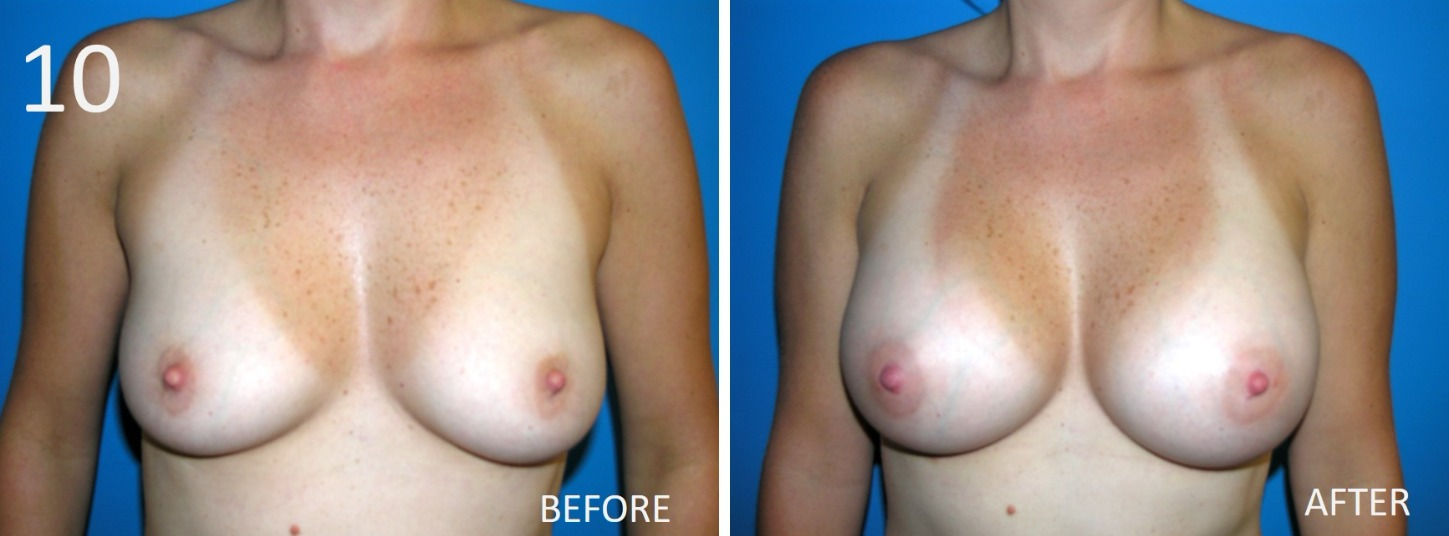 Breast Augmentation Larry Sargent 10