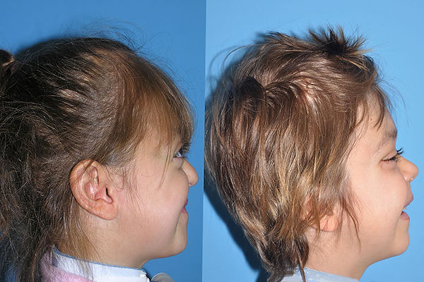 Crouzon Syndrome Before and After