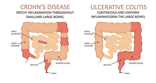 crohn's disease and ulcerative colitis.p