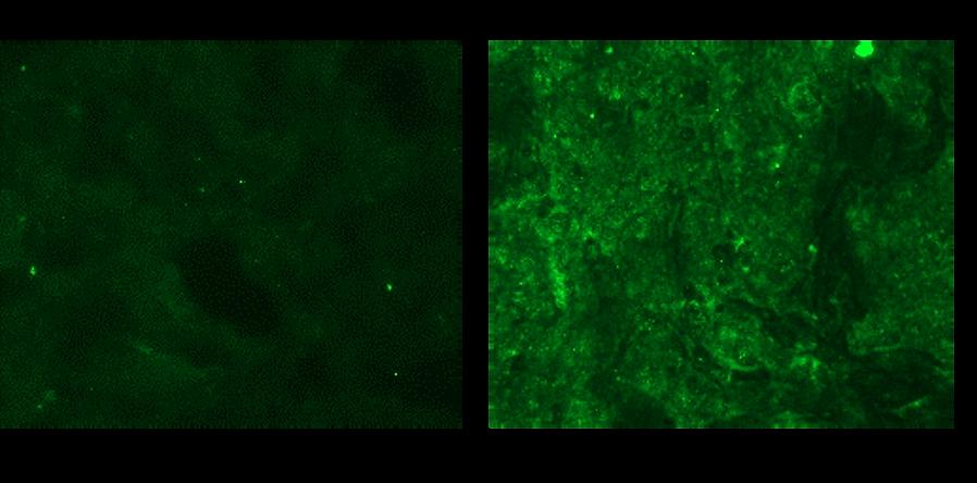 担がんマウス免疫染色.png