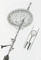 colicar28.jpg