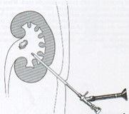 colicar34.jpg