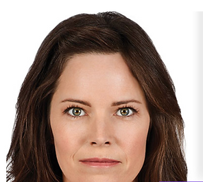httpswww.juvederm.combefore-and-after-ph