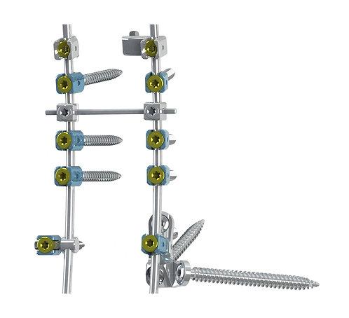 SAXXO - Sistema de Fijación para Deformación Espinal