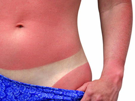 Sunburn! Oh No, Will This Effect My Spray Tan?