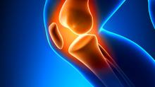 Patellar Tendonitis / Knee Pain