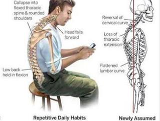 Posture, Part one.
