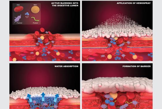 Hemospray Mechanism Illustrations.jpg