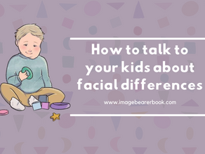 How to talk to your kids about facial differences