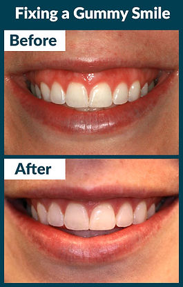 gummy_smile_before_after (1).jpg