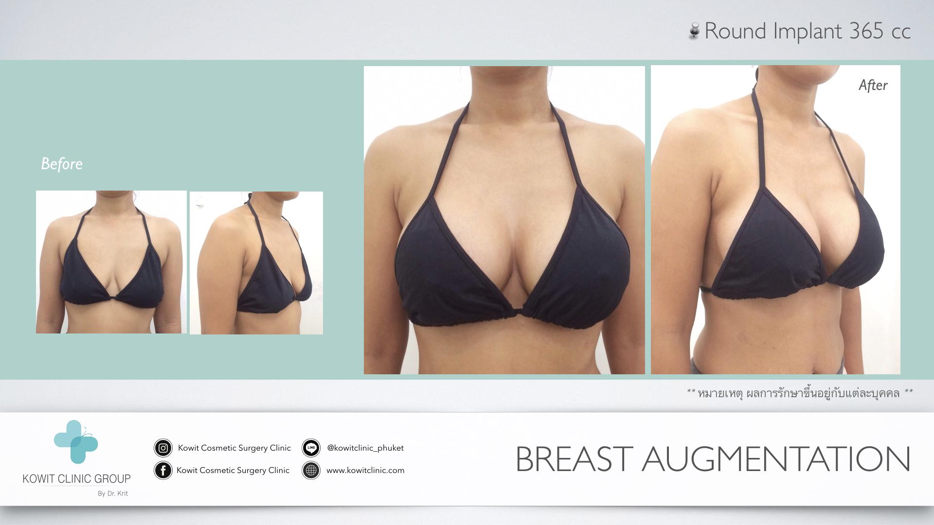 เสริมหน้าอก_breast_implant