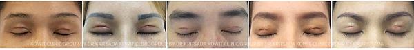 ทำตาสองชั้นแบบกรีดสั้น short incision blepharoplasty