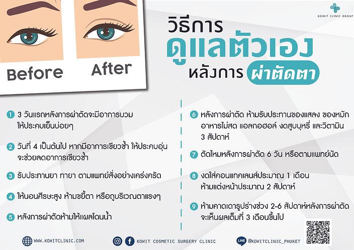 วิธีการดูแลหลังผ่าตัดทำตาสองชั้น แก้ไขหนังตาตก