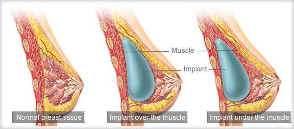 การวางตำแหน่งซิลิโคนเสริมหน้าอก-anatomy-of-breast-implant-implants-posit