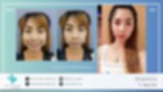 Botox 16;9.002.jpeg