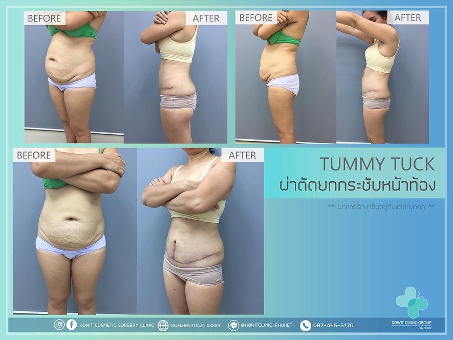 Tummy tuck ผ่าตัดไขมันหน้าท้อง ยกกระชับหน้าท้อง
