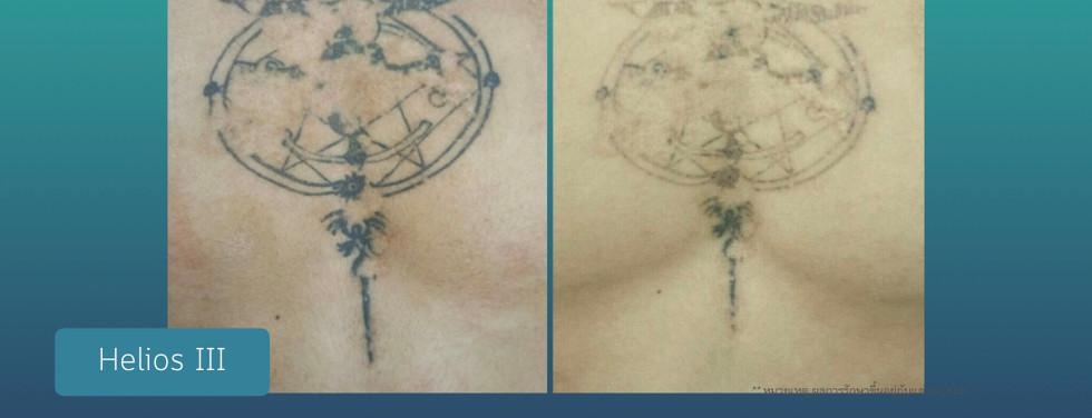 tattoo removal ลบรอยสัก