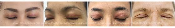 ทำตาสองชั้นแบบกรีดยาว conventional blepharoplasty