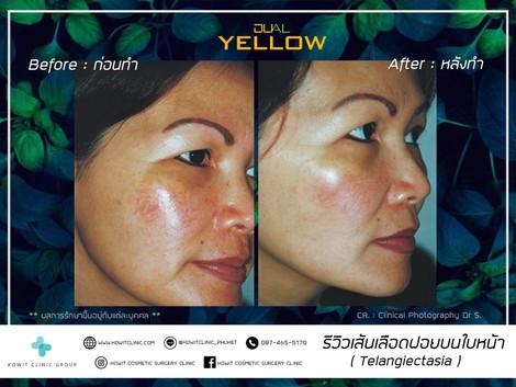 รีวิว Dual Yellow นอน 2.jpg