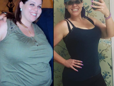 Why would you have surgery for weightloss?
