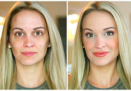 colorescience-before-and-after.jpg
