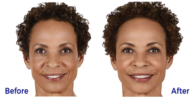 Juvederm Before and After from Juvederm.
