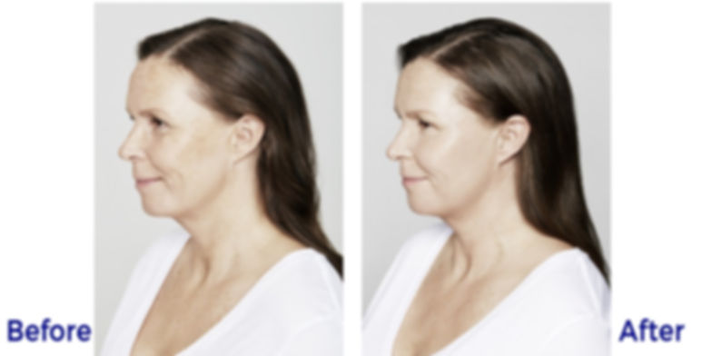 Restylane Before and After from Restylan