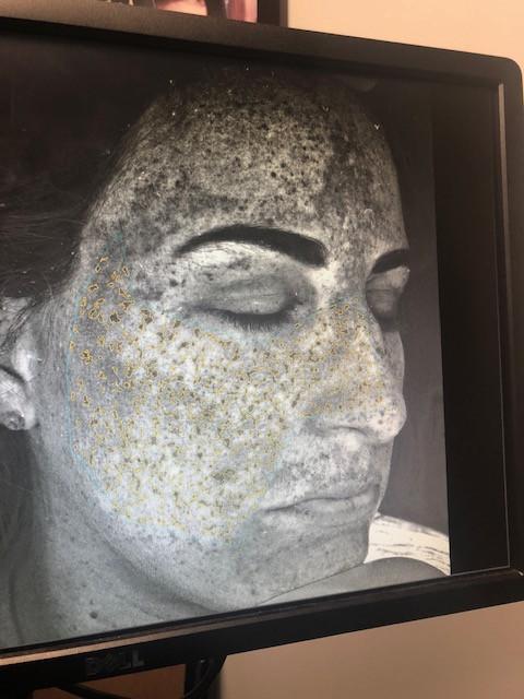 Visia Machine shows skin damage