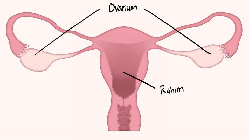 Kista Ovarium Apakah Berbahaya