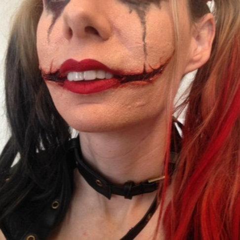 Chelsea Smile Prosthetics
