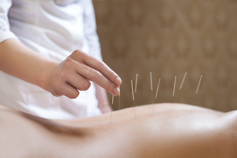 acupuncture; acupuncturist; therapy; wellness; farnham; surrey; therapy