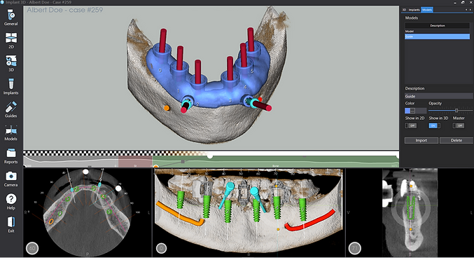 Implant 3D_Software.png