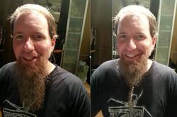 Beard Cultivation