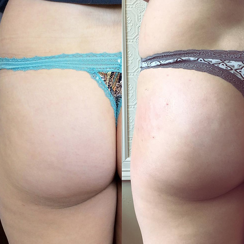 Sculptra for Buttock Enhancement