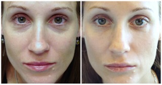 Restylane For Rested Eyes Tear Trough Injections For
