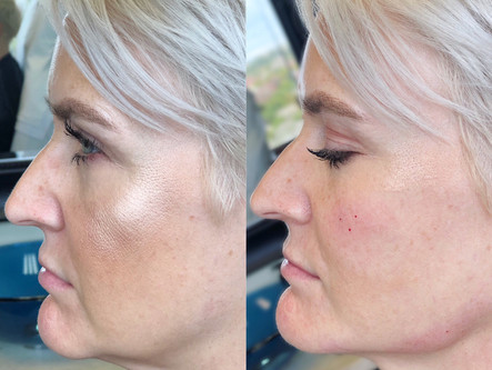 Trending Treatment: Radiesse for Jawline Definition