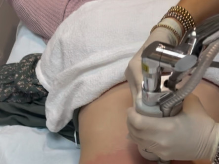 Halo Laser for Body:  Working on That Skin Quality 22 Years Later!