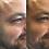 Thumbnail: Botox 60 units