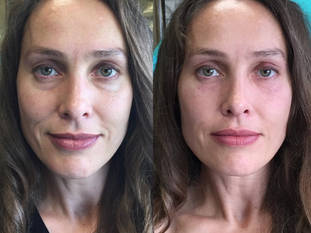 All About the Eyes: Treating Above the Mask!