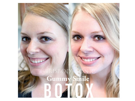 Turn That Frown Upside Down! Botox for Sad Smiles, and Other Lesser Known Injectable Treatments