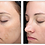 Thumbnail: Halo Laser & After-Care Products
