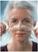 Prejuvenation: Preventative Botox