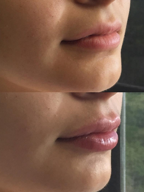 Two Juvederm LIMITED QUANTITY