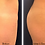 Thumbnail: Sculptra for Buttock Enhancement