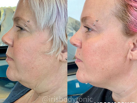 """Chin Up! Kybella for Dissolving """"Double Chin"""""""
