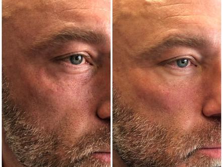 Treatments + Skincare for Men