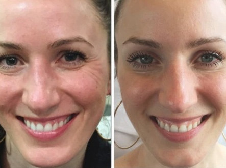 Botox for Better Skin Quality