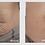 Thumbnail: Skin Tyte: Abdomen + Product