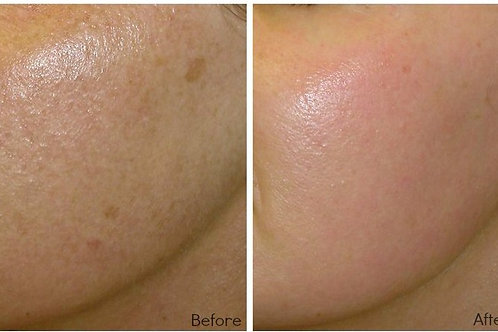 Whisper Laser Resurfacing Pkg of 3