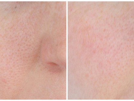Airbrush with Botox: Micro Botox injections can diminish oily skin and shrink pores